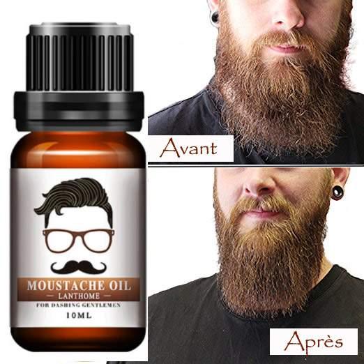 Résultat avant et après