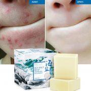 savon pour acné 4